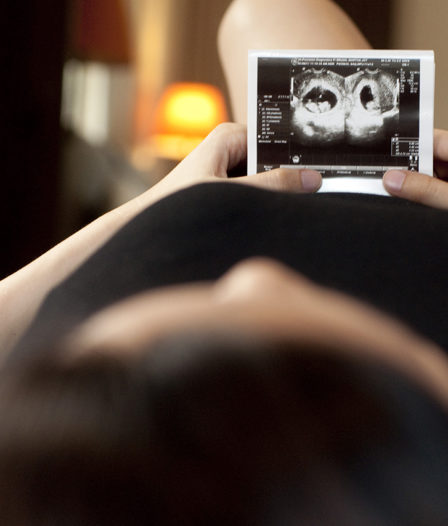 A Woman In Black Dress Is Holding A Sonogram Of A Baby